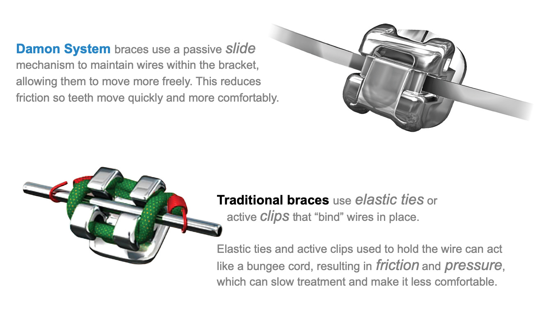 Traditional fixed brace vs self-ligating brace bracket, London treatment