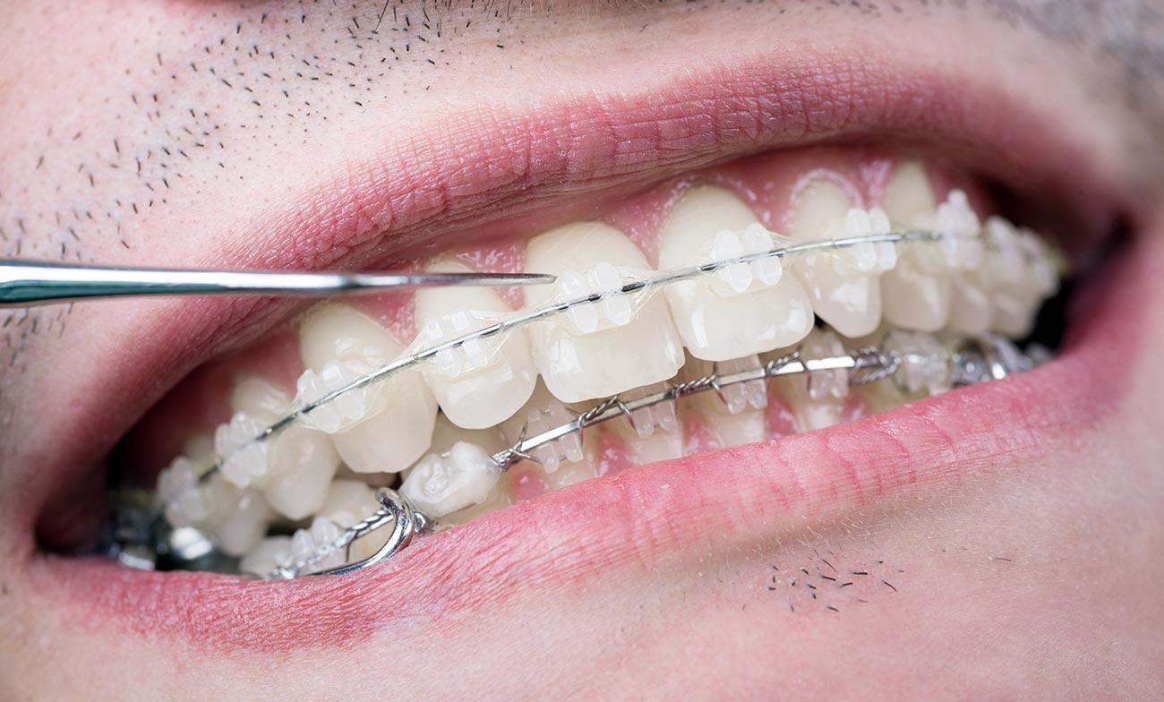 Treatment with ceramic braces