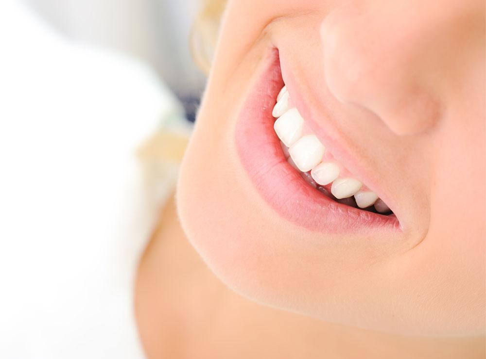 Dental cone beam CT scan for orthodontics