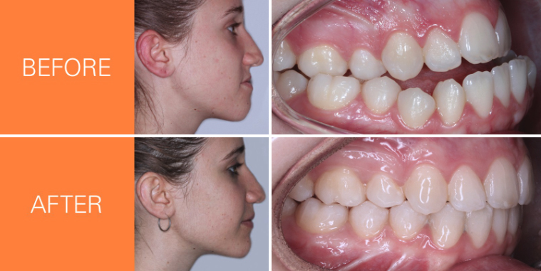 Insignia Advanced Smile Design - before and after