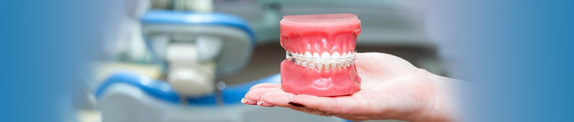 Clear self-ligating braces London