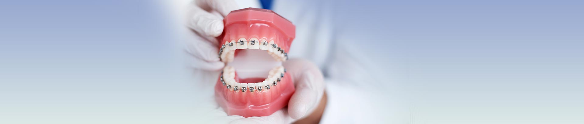 Metal self-ligating braces, London