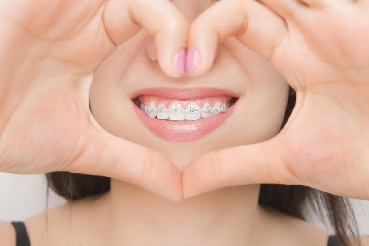 Treatment with Gemini braces