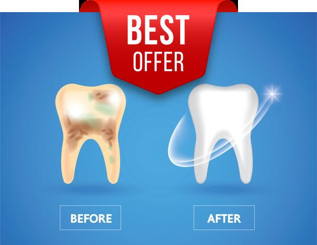 Teeth-whitening-offer-London